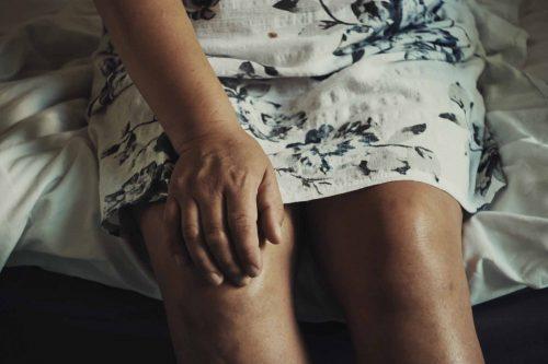 Prehranom protiv osteoartritisa - bolova u zglobovima